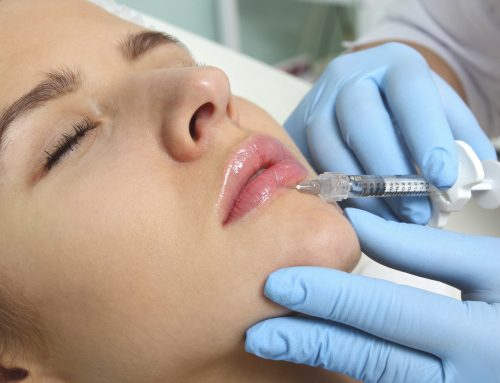 Dermal Fillers at Soprano Ice Edinburgh