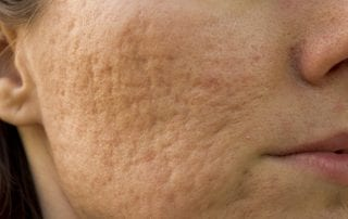 Acne scarring solution Edinburgh