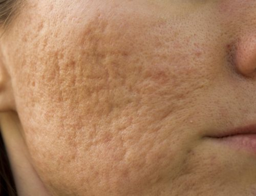 Four Solutions For Acne & Acne Scarring